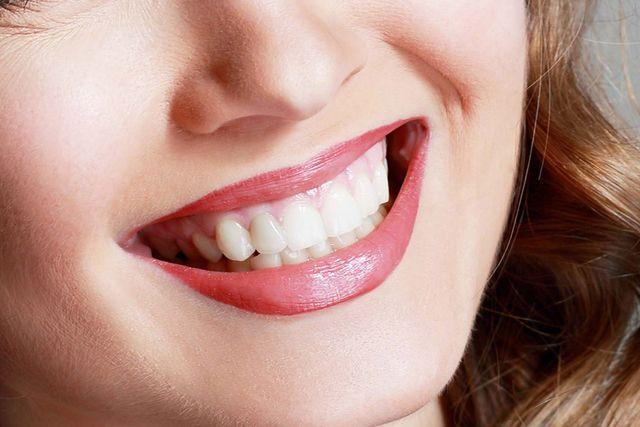 bella donna sorriso