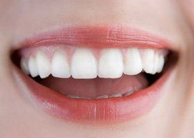 Dental practice - Romford, London - Oakland Dental Care - White teeth