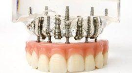 studio dentistico dr.ssa talpone, alessandria, impinti odontoiatrici