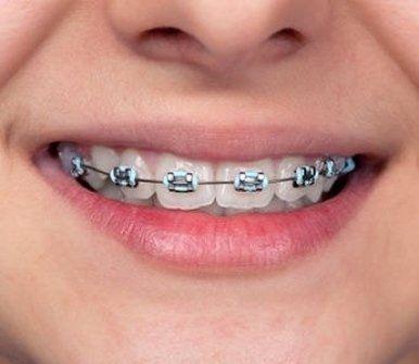 studio dentistico dr.ssa talpone, alessandria, apparecchio