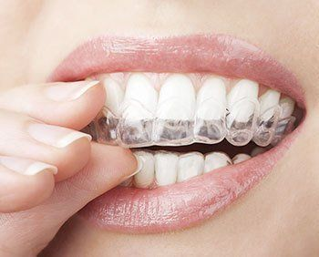 Orthodontic Braces San Antonio TX