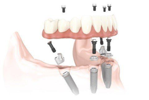 All-on-4® Implant Supported Fixed Bridge