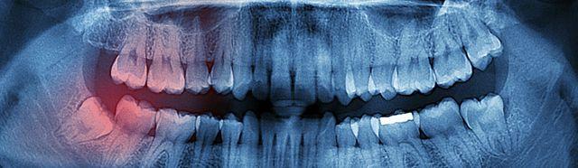 Gum Disease Treatment in San Antonio TX