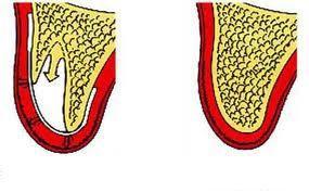 rigenerazione ossea studio dentistico Sorriso e salute