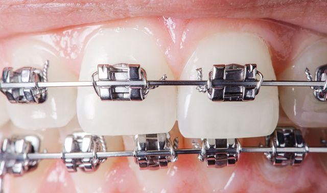 apparecchio fisso applicato su denti
