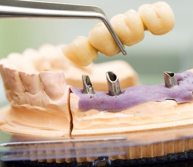 dental implants Wilmington NC
