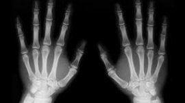 radiologia mani
