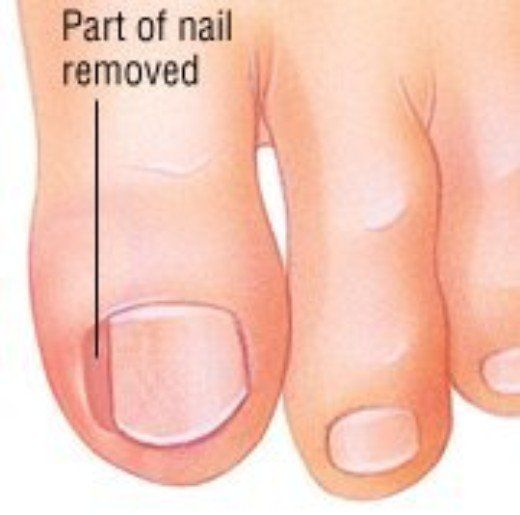 Ingrown Toenail Treatment In Brisbane Mclean Partners