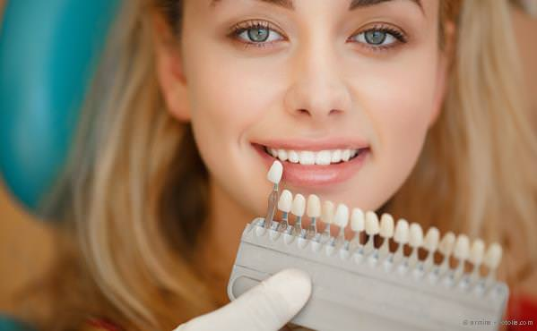 Praxis-Marketing Zahnarzt Bleaching Zahnaufhellung