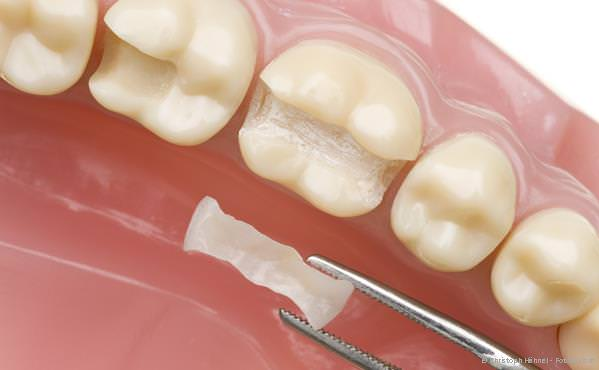 Praxis-Marketing Zahnarzt Keramikinlays und Kompositfüllungen