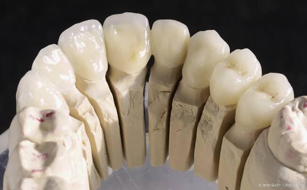 Praxis-Marketing Zahnarzt Zahnersatz