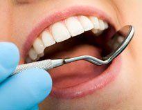 dentista esamina denti con specchietto