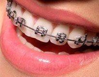 apparecchio dentale fisso
