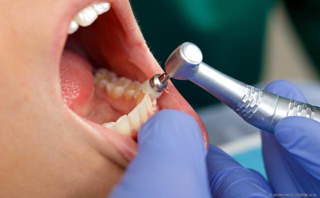 Zahnpolitur bei der Professionellen Zahnreinigung