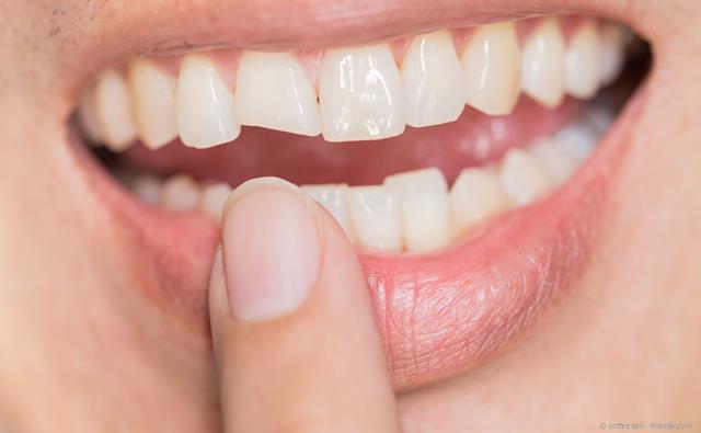 Abgebrochener Schneidezahn: Mit einem sog. Komposit oder einem Keramik-Veneer kann der Zahn wiederhergestellt werden.