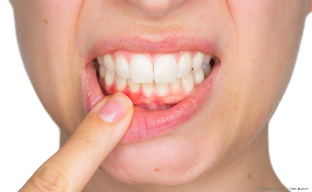 Laser gegen Lippen-Herpes und Aphthen