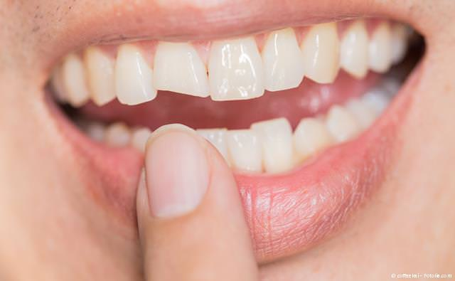 Ein konfektionierter Sport-Gebissschutz schützt die Zähne nicht immer vor Verletzungen.