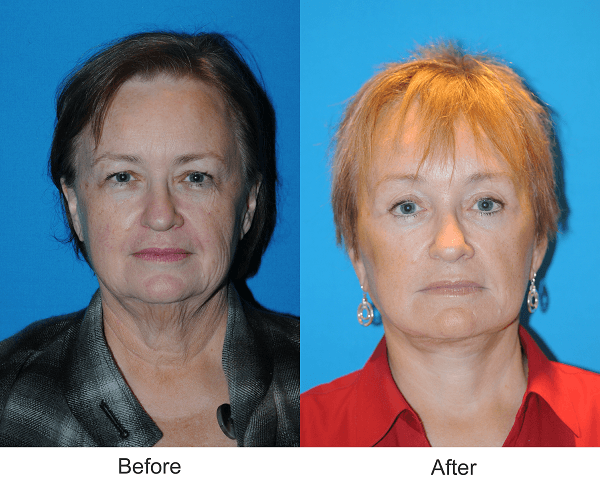 nashville facelift and browlift plastic surgery before and afters