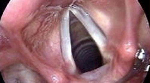 Endoscopia diagnostica per visualizzare le corde vocali negli adulti.