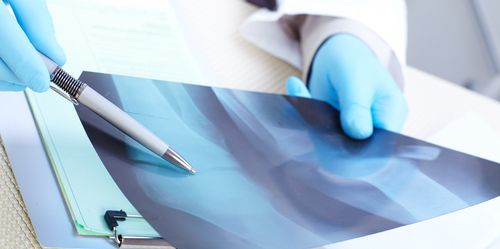 Doctor examining the x-ray of a patient for providing diabetic foot care in Fort Mohave, AZ