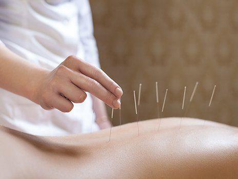 una mano che sta infilando degli aghi da agopuntura in un corpo di una donna girata a pancia in giù