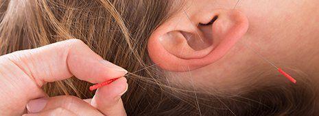 una mano che inserisce un ago da agopuntura nell'orecchio di una donna