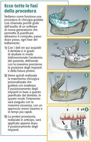 figura con immagini e testo relativi alle fasi della procedura di chirurgia guidata