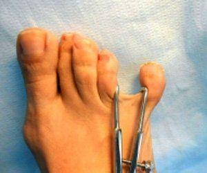 trattamento dita dei piedi
