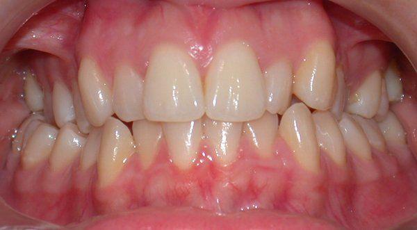 denti adulti