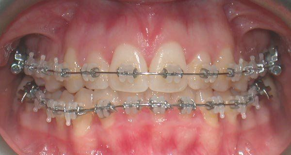 apparecchio dentale per adulti