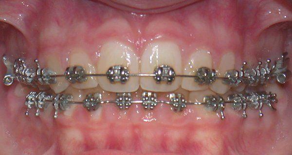 apparecchio fisso dentale