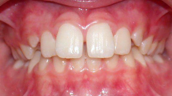 denti adolescenti
