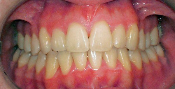 cura denti dopo apparecchio