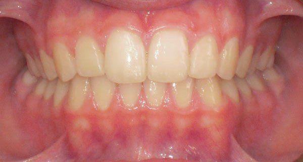 cura denti adolescenti