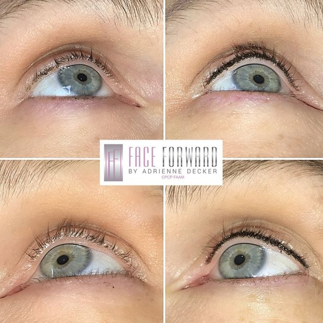 Micro Blading | Red bank, NJ | Lotus Health & Aesthetics Spa