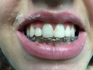 ortodonzia fissa caserta orta di atella