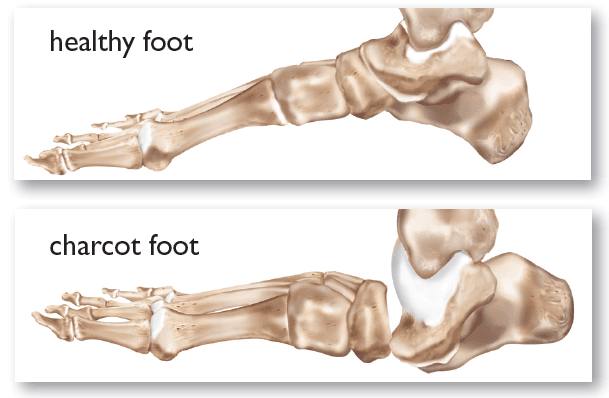 Charcot Joint Treatment | Specialist Foot & Ankle Group