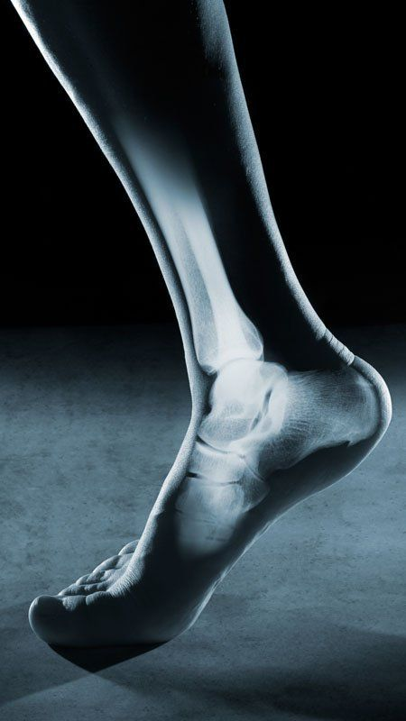 picture of foot with xray of bones superimposed over image for ankle surgery