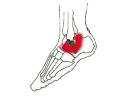 diagram of ankle indicating incision location
