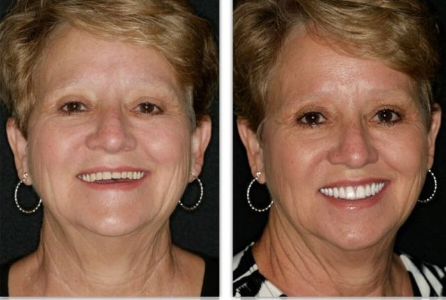 Tulsa Denture Fountain of Youth® | FOY® Dentures by Dr  Hodges