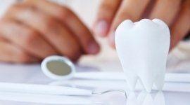 odontoiatria conservativa, protesi dentali, implantologia osteointegrata