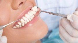 visite dentistiche, cura della bocca, controllo delle carie