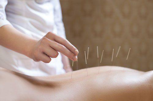 Applicando le aghi nella schiena di un paziente