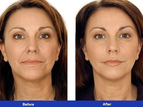 Before and after image of the patient in Sugar Land
