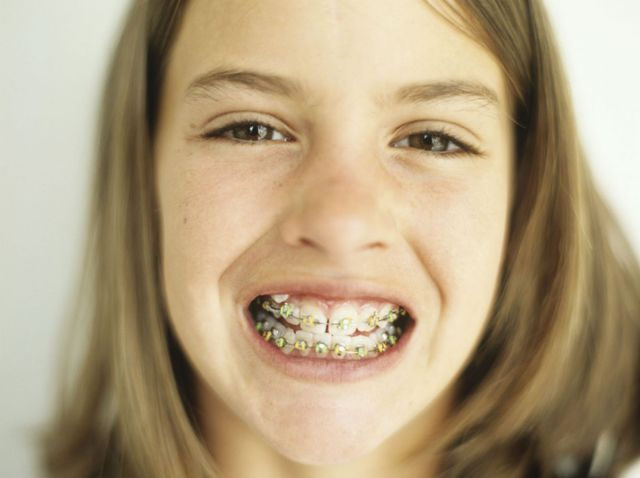A girl with braces after teeth cleaning in Kailua, HI