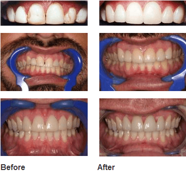 Teeth Image Before & after