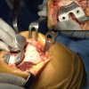 operazione ossa