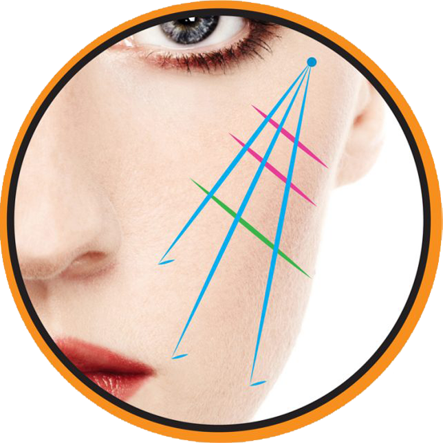 PDO Threading | Barcode Lift | Eyebrow Lift | Glabella Lift | Jowl Lift