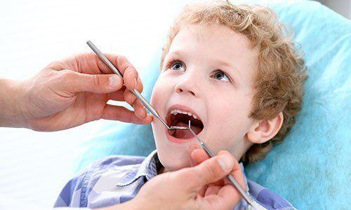 un bambino con capelli ricci biondi con la bocca aperta e due mani di un dentista con rampino e specchietto che gli controllano la bocca