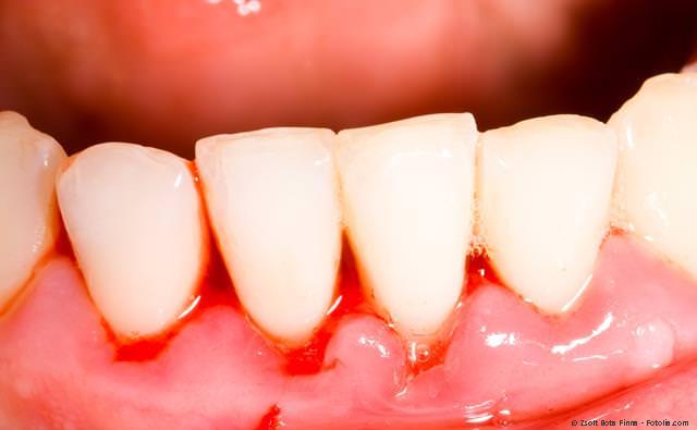 Entzündetes und blutendes Zahnfleisch bei einer Parodontitis